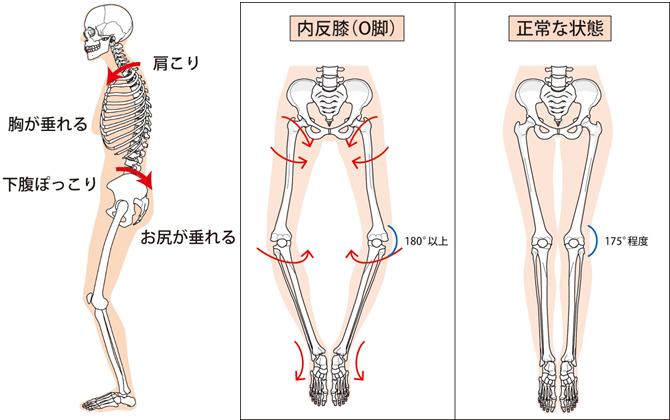 骨格の図解
